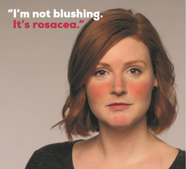 Rosacea Awareness Month Staffordshire Skin And Laser Clinic